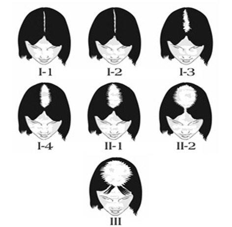 La calvitie chez la femme 1